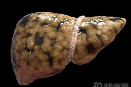 晚上睡觉出现这一症状,当心脂肪肝来袭!
