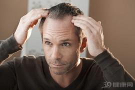 男性为什么会秃顶?别乱猜,这男性脱发自救指南:4个方法很实用,为了发际线快收藏里告诉你准确答案